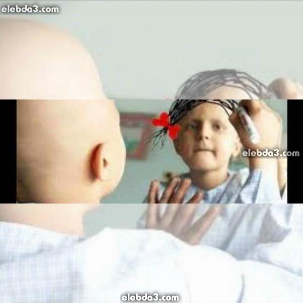 مقال: اللوكيميا عند الاطفال و الرضع | سرطان الأطفال