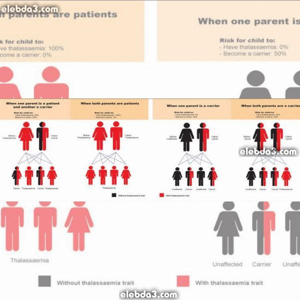 مقال مرض الثلاسيميا و الزواج امراض الدم عند الاطفال