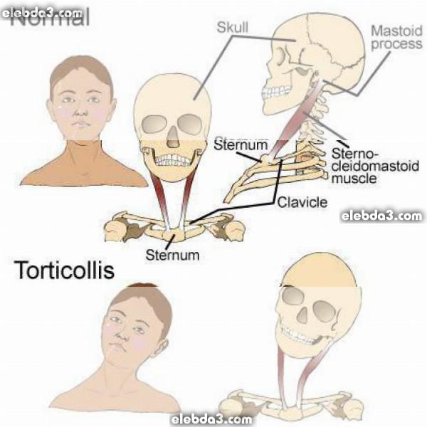 مقال: الصعر أو ميلان رقبة الطفل | امراض العظام عند الاطفال