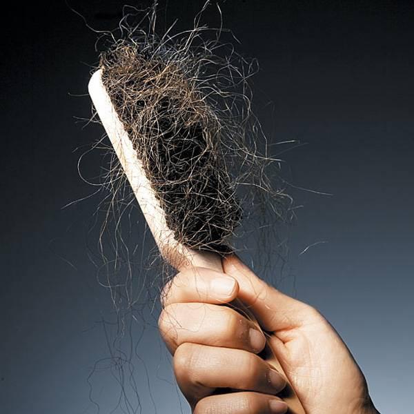 مشاكل الشعر - طرق العلاج