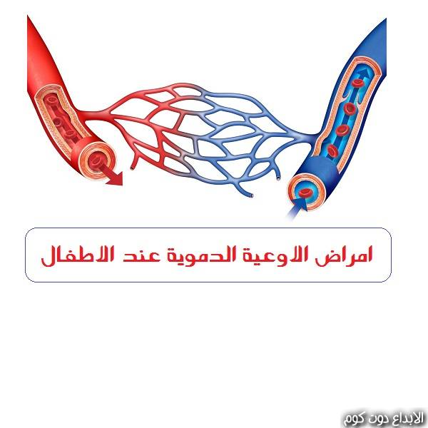 امراض الأوعية الدموية عند الأطفال