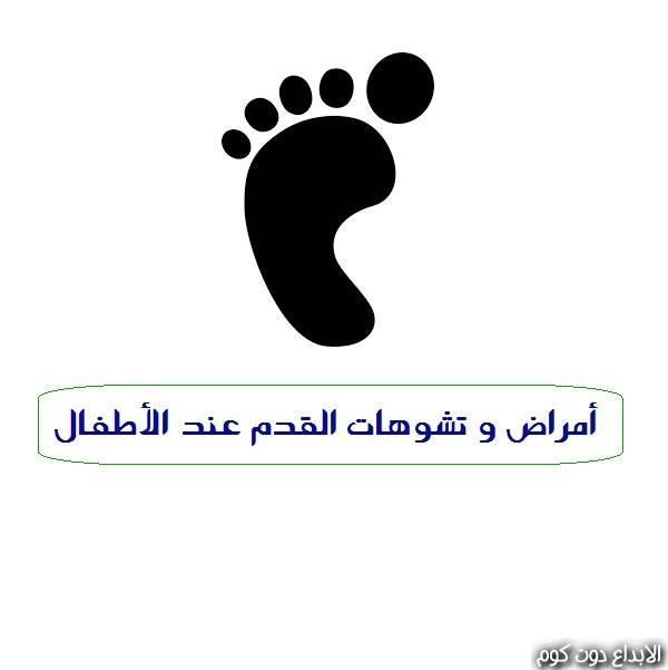 أمراض و تشوهات القدم عند الأطفال