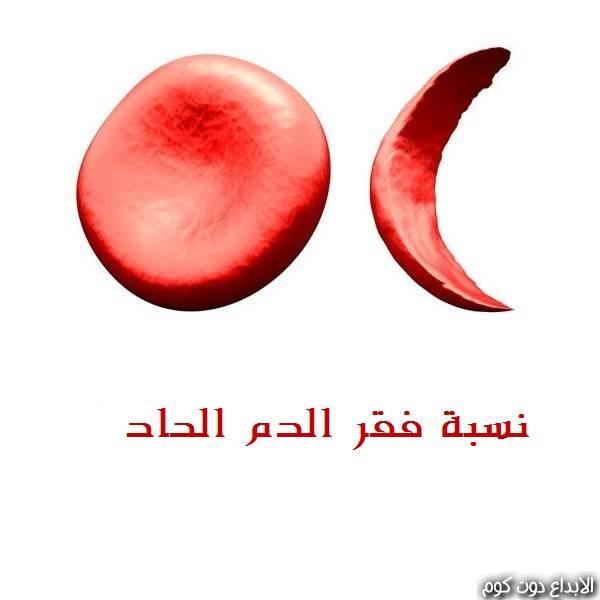 مقال: نسبة فقر الدم الحاد | امراض القلب و الدم